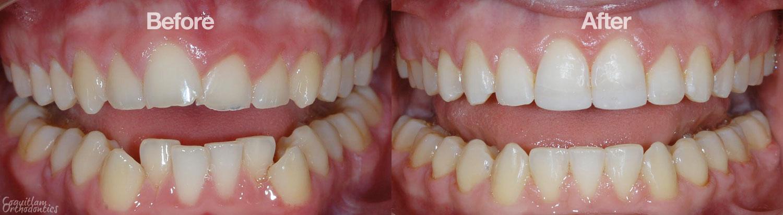 Crowding | Photo Gallery | Coquitlam Orthodontics ...